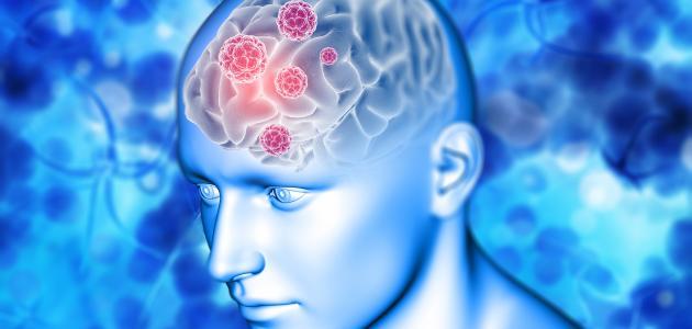 التهاب اعصاب الدماغ الاسباب الاعراض وطرق العلاج بالاعشاب مجلة المتكتك